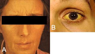 manchas en la cara causadas por el higado, manchas por el higado, jaundice, ictericia, manchas amarillas en la piel