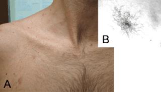 manchas producidas por el higado, manchas de higado, araña de angiomas