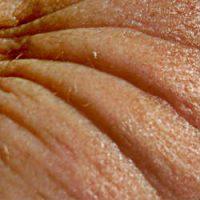 causas de las arrugas, causa de las arrugas, arrugas causa, tipos de arrugas,