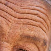 arrugas en la piel, que origina la aparicion de las arrugas, envejecimiento prematuro de la piel, arrugas edad,