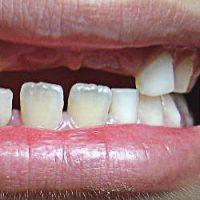 dientes de leche, caida de los dientes de leche, a que edad se caen los dientes de leche, dientes de leche no se caen,