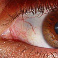 quemadura de cornea, quemadura corneal, quemadura en los ojos por soldadura, quemadura de sol en los ojos,