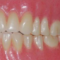 dentadura postiza alimentación, dentadura postiza limpieza, dentadura postiza cuidados, dentadura nueva